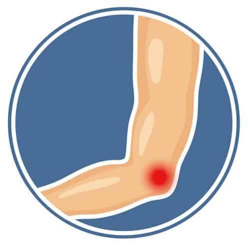 En tegnet underarm og albue med et rødt smerte/skades punkt vist på albuen.