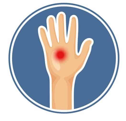 En tegnet hånd fra et menneske med et rødt smerte - skades punkt vist på hånden.