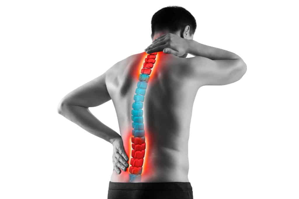 En mand set bagfra, står i bar overkrop og tager sig til lænden og nakken. Der er illustreret rygraden, med smerte zoner i lænden og nakken.